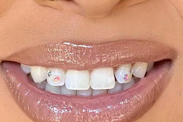 Скайсы и твинклы: почему украшения для зубов снова входят в моду