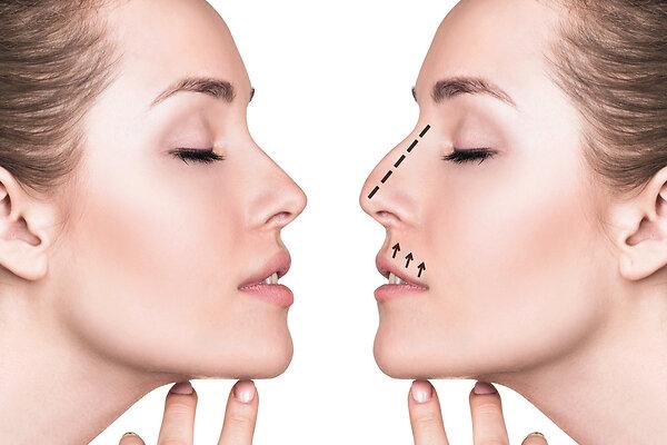 Как изменить форму носа без операции