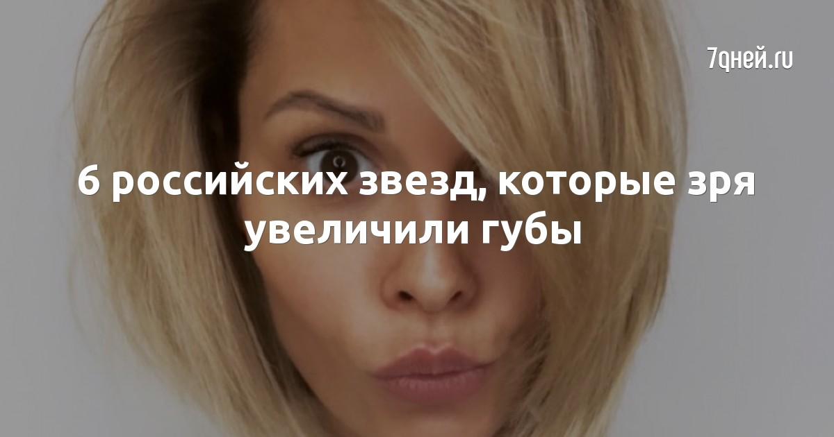 6 российских звезд, которые зря увеличили губы