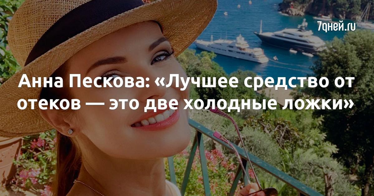 Анна Пескова: «Лучшее средство от отеков — это две холодные ложки»