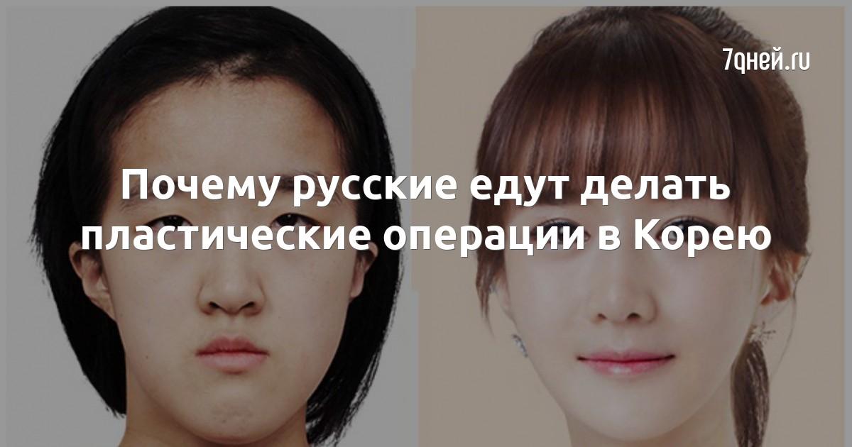 Почему русские едут делать пластические операции в Корею